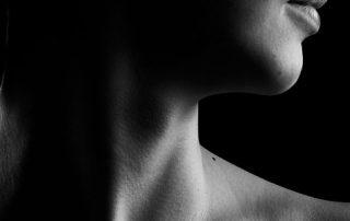 latigazo cervical o sindrome de estres postraumatico