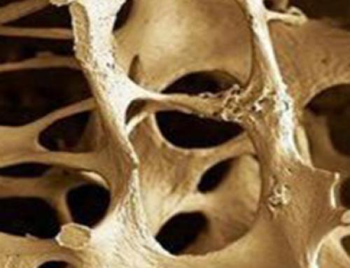 La osteoporosis: mucho más que una carencia de Calcio