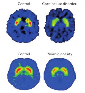 Obesidad: de la inflamación a la adicción